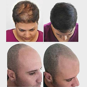 Image result for hair simulation