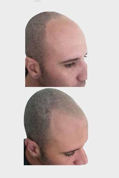 Hair-Simulation-600